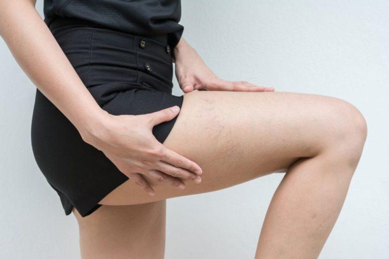 Pękające naczynka na nogach – jak się ich pozbyć?