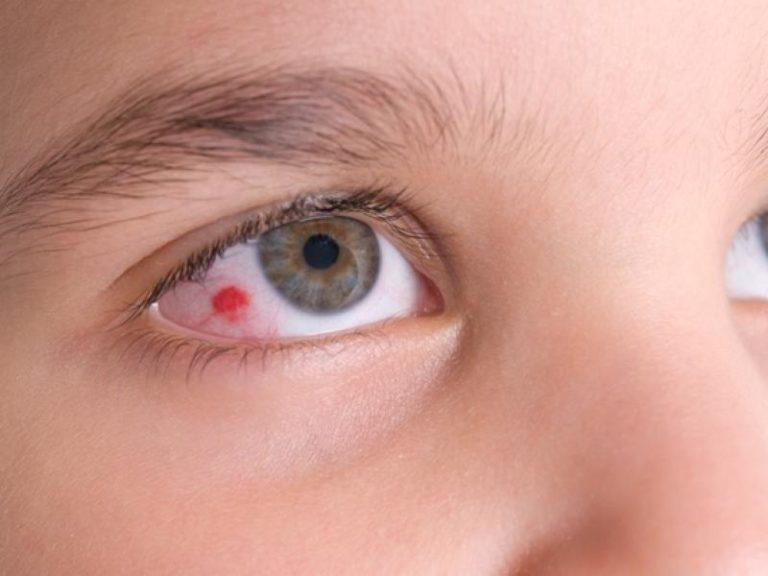 Czym jest wylew w oku?