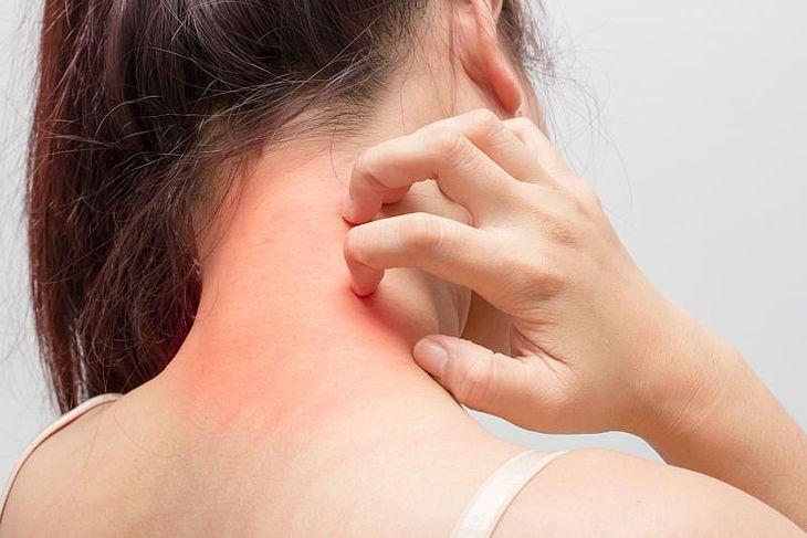 Liszaj na szyi – strzeżmy się tej choroby