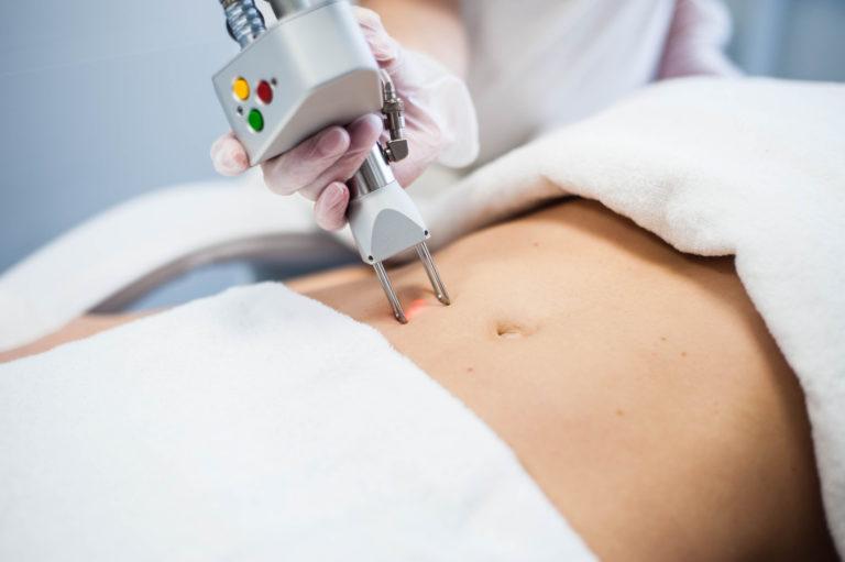 Liposukcja kawitacyjna efekty – czy warto?